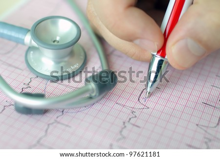 hand holding pen making mark on ECG - stock photo