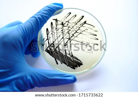 Hand holding plate with bacterial colonies of Staphylococcus aureus - black colonies of bacteria Staphylococcus aureus in Baird Parker Agar plate Stock fotó ©