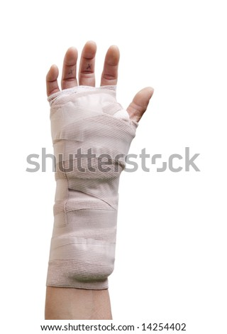 Hand in a cast from carpal tunnel surgery