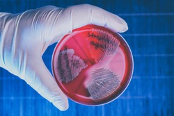 Hand in glove holding Petri plate with bacteria Steptococcus Phaemolifticus G, Streptococcus Agalactiae, Streptococcus Phaemolifticus