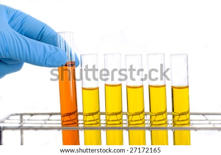 Hand in glove picking up a test tube/medical sample