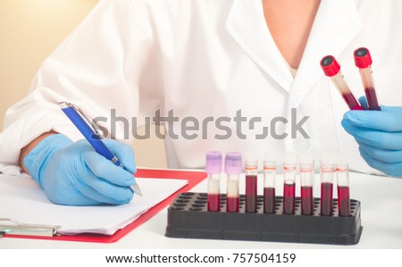 hand of a lab technician holding blood tube test and background a rack of color tubes with blood samples other patients / laboratory technician holding a blood tube test