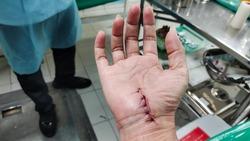 Hand of a woman with a stitched wound, Close up Fascia surgery.