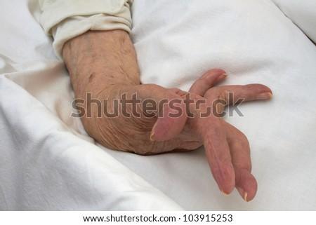 Hand of an elderly woman by arthritis, rheumatism, osteoarthritis