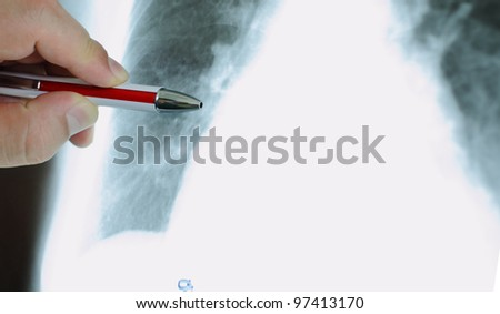 hand of the doctor with pen, pointing to an X-ray. photo.