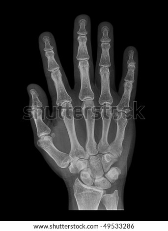 hand on black background, x-ray