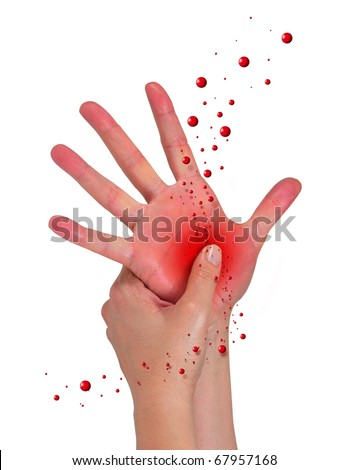 hand open with pain in the palm