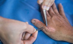 Hand with blade and forcep stitches off wound. wound closure is performed with sutures (stitches), staples. - Image