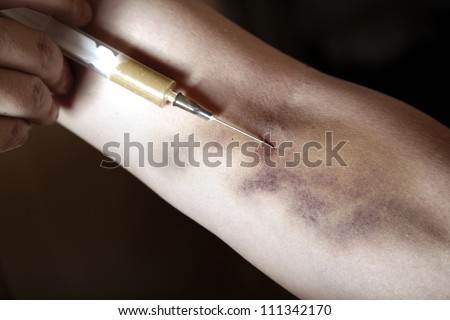 Hand with bruise and heroin syringe. Close-up photo. Natural colors