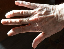 Hand with fingers deformed by arthritis disease close up. Fingers of the hand distorted by arthritis. The right hand with a deformed finger joints .