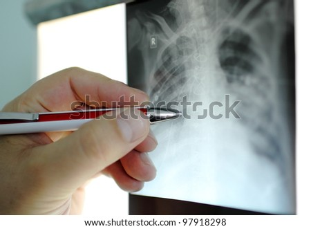 hand with  pen points to an area X-ray. Photo - stock photo