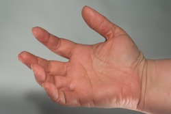 hand with scaly itchy peeling sking that is cracked and painful contact dermatitis caused by iritants or allergens