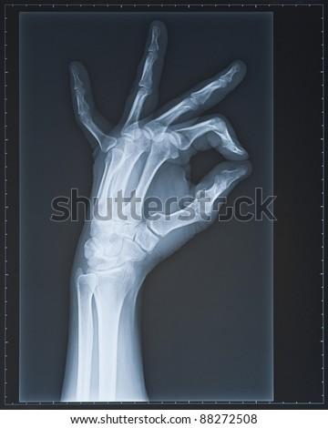 Hand X-ray. Female.