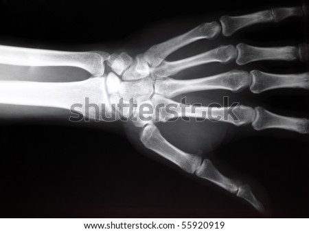 hand x-ray image medical background