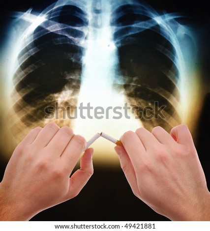 Hands breaking a cigarette in front of the x ray image of human abdomen