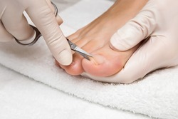 Hands in gloves cares foot nails. Pedicure beauty salon. Foot fingernails cutting with scissors.