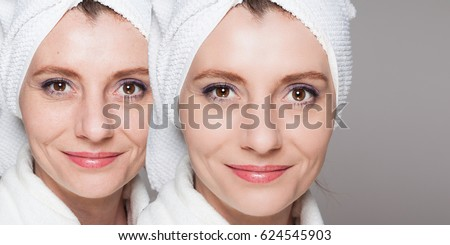 happy woman after beauty treatment - before/after shots - skin care, anti-aging procedures, rejuvenation, lifting, tightening of facial skin #624545903
