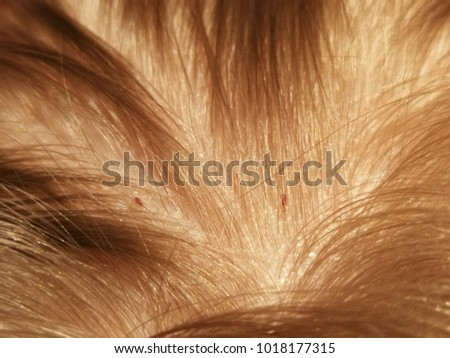 Head lice (louse) isolated