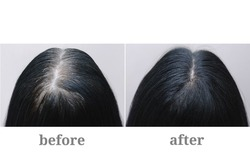Head of a girl with black gray hair. Hair coloring.Top of the head. Before and after.