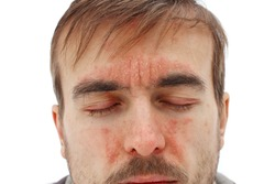 head of sick man with closed eyes with red allergic reaction on facial skin, redness and peeling psoriasis on nose, forehead and cheeks, seasonal skin problem, white background