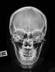 Head x-ray image.