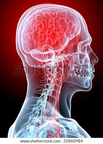 headache / migraine - stock photo