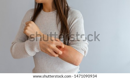 Health allergy skin care problem. Closeup young woman scratching her arm with allergy rash. Woman Scratching an itch . Sensitive Skin, Food allergy symptoms, Irritation