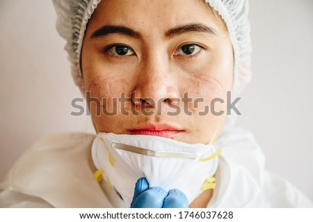 Healthcare worker with acne and facial wounds occur from a medical mask after work for a long time in hospital during covid-19 pandemic. Wearing mask for prolonged periods can damage the skin.