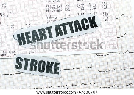 heart attack pain location. pictures Chest pain; a heart