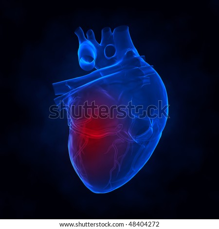 Heart attack xray view