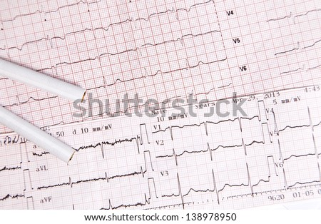 Heart disease caused by cigarettes and smoking