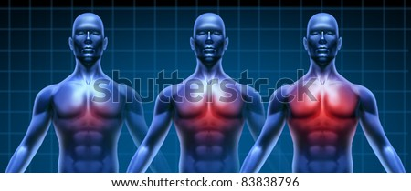 Heart illness getting gradually worse represented by three humans with growing coronary disease of  the chest area represented by increasing red highlight of the cardiac medical inflammation.
