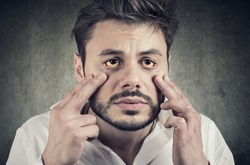 Hepatic disease. Sick man looking in a mirror has yellowish eyes as sign of possible liver infection or other disease.