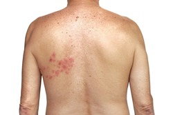 Herpes zoster on the left side of torso on the white background