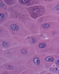 High magnification micrograph of the epidermis showing the transition between the stratum spinosum (bottom) and the stratum granulosum (up).