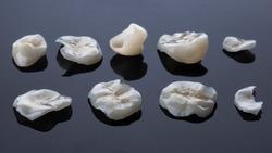high quality ultra thin dental dental veneers tabs