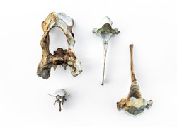 hip bone and broken vertebrae
