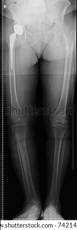 Hip replacement x-ray image