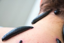 Hirudotherapy medical leech treatment neck acupuncture medical center