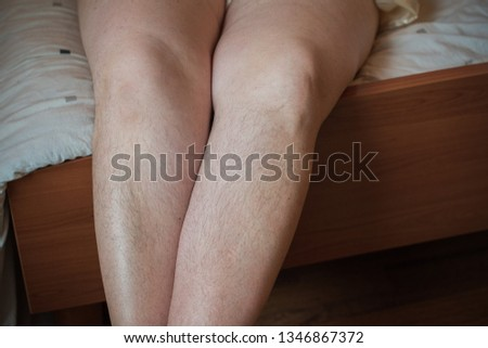 Hormonal disorder, hairy body, excess weight in women. Health problems, increased hairiness overweight concept