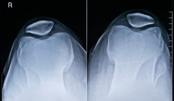 Human adult male right knee anatomy top view x-ray image. Radiography and medical imagery.