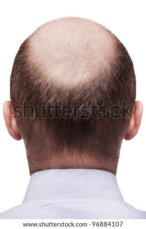 Human alopecia or hair loss - adult man bald head rear or back view - stock photo