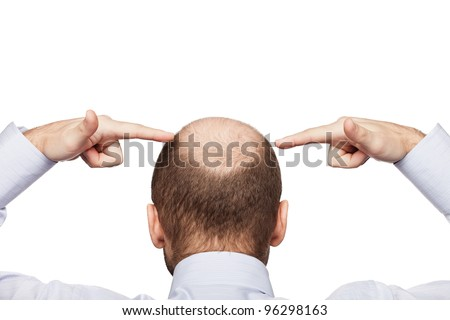Human alopecia or hair loss - adult man hand pointing his bald head