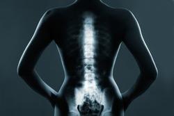 Human backbone in x-ray, on gray background