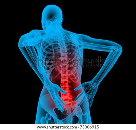 Human backbone in x-ray view, Back Pain, Backache
