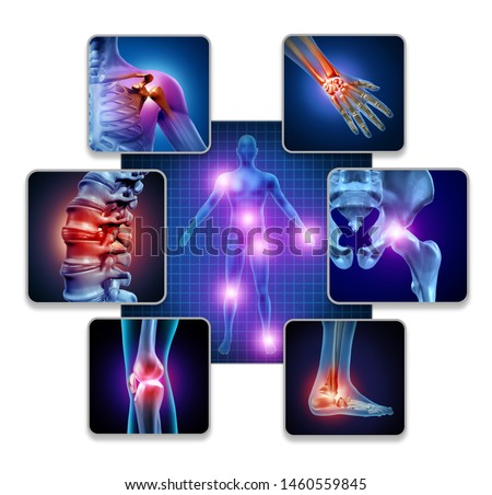 Human body joint pain concept as skeleton and muscle anatomy of the body with a group of sore joints as a painful injury and medical symptoms with 3D illustration elements.