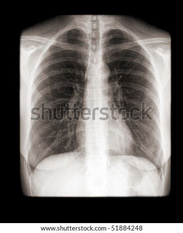 X Rays Of Lungs. with normal lungs on x-ray