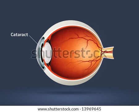 Human eye - cataract (eye disease)