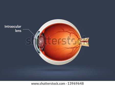 Human eye - intraocular lens