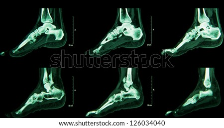 Human foot ankel and leg  CT